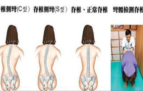 脊椎侧弯好发青少年族群 肩膀不一样高小心弯度大